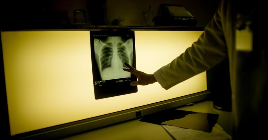 Туберкулезом страдают люди с подавленной иммунной системой