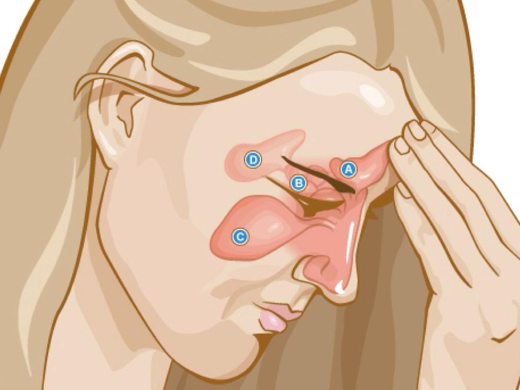 Носовые пазухи