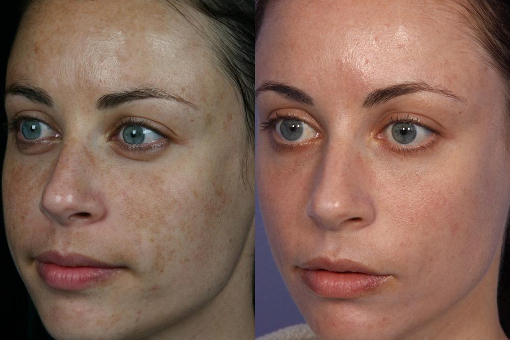 Фотоомоложение по типу кожи