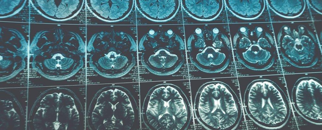 Опухоль в мозге