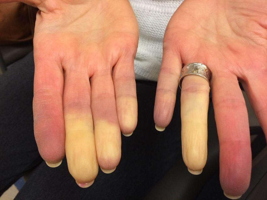 побелевшие пальцы