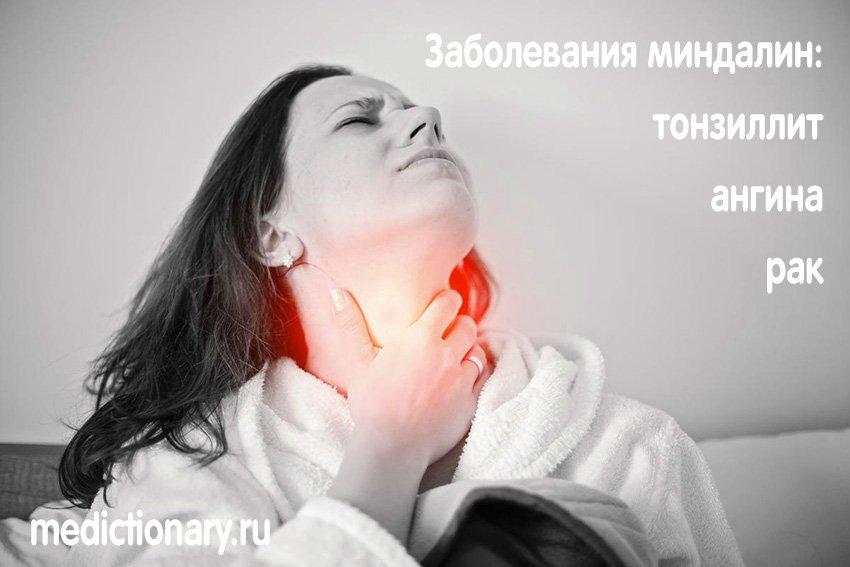 Заболевания миндалин