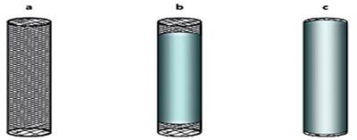 Металлические стенты