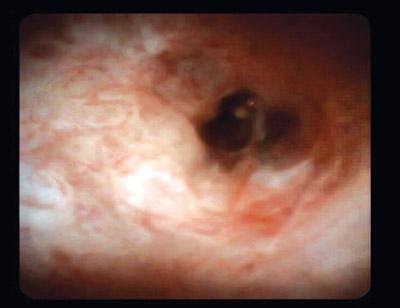 Холангиоскопия - картина злокачественного стеноза