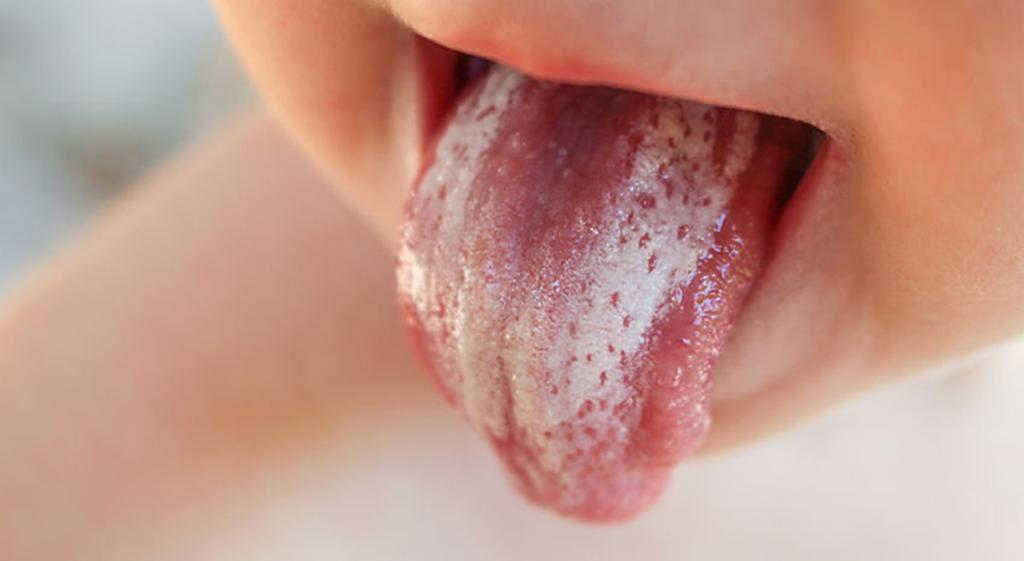 белый налет на языке у ребенка от Candida Albicans