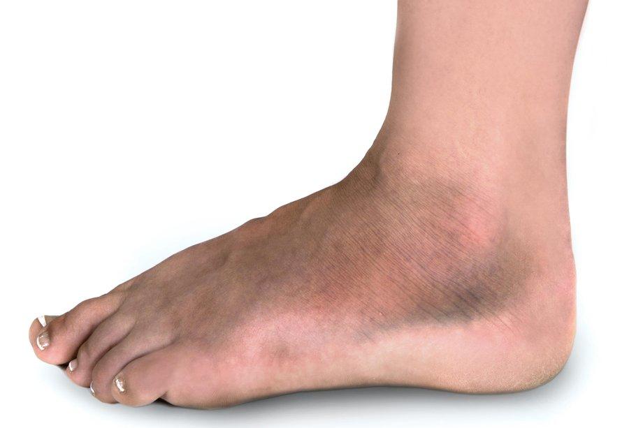 травмы голени