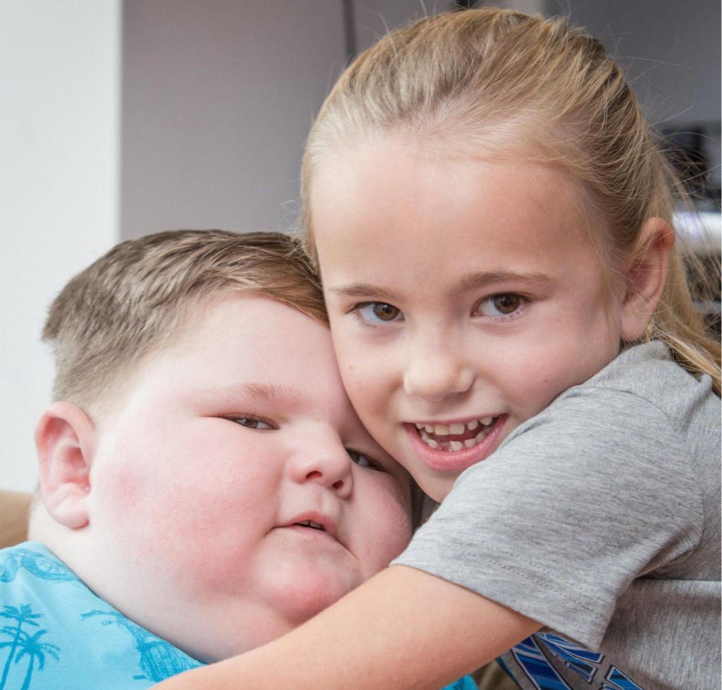 Фредди Хант страдает от гипоталамического ожирения