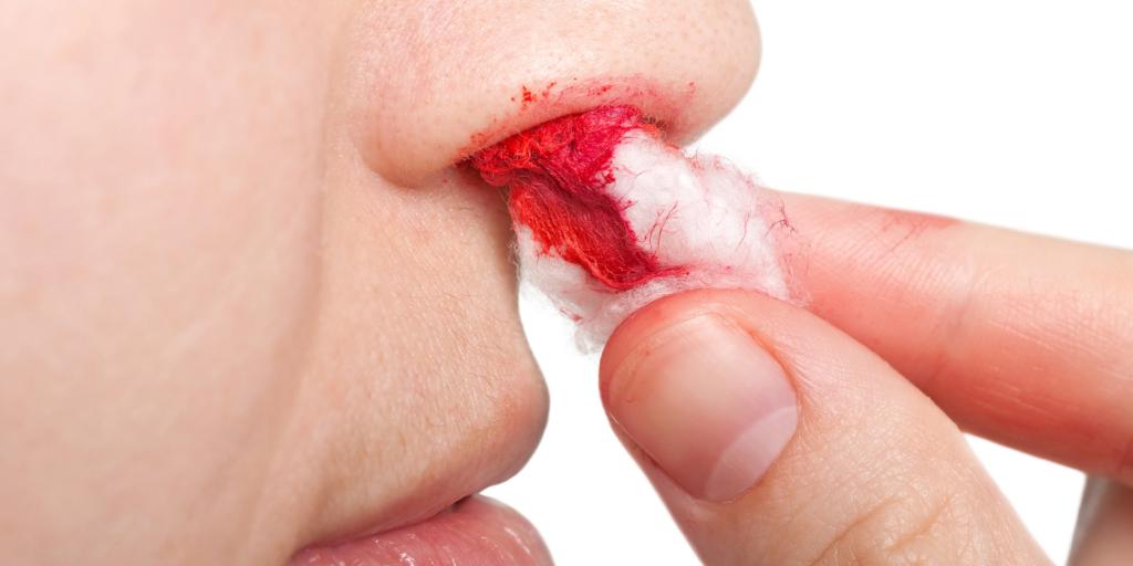 тампон в нос при кровотечении