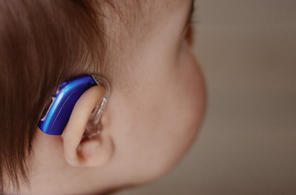 слуховой аппарат для ребенка