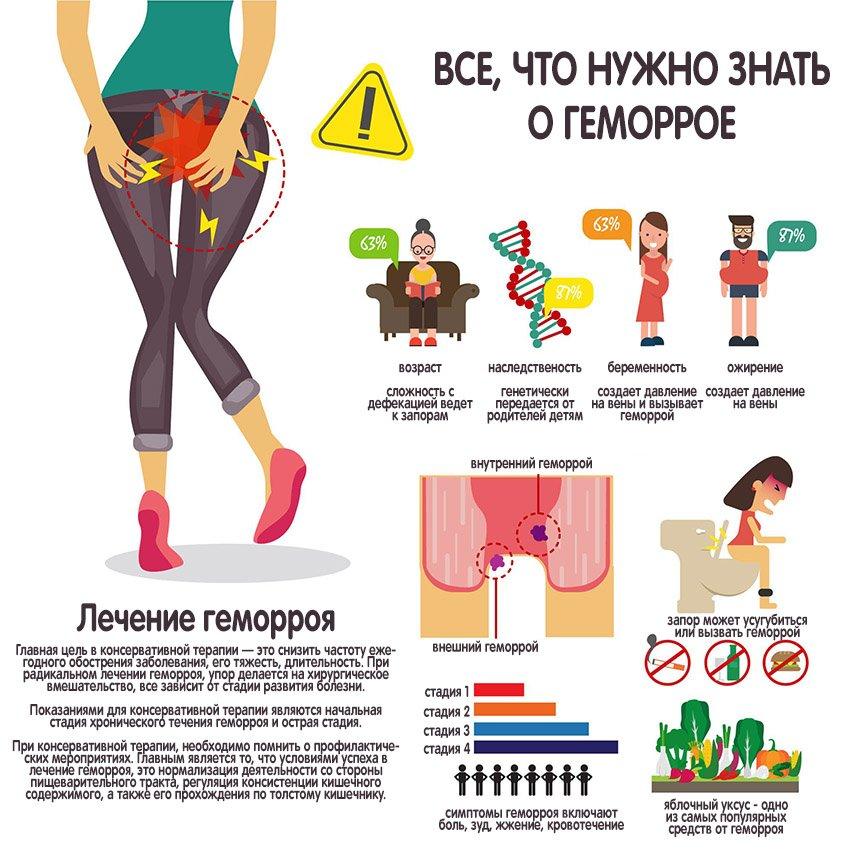 геморрой инфографика