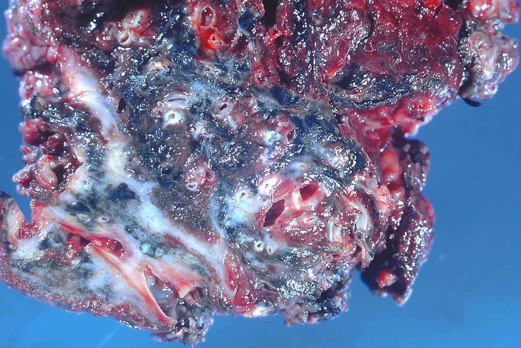 Обширный фиброз плевры и паренхимы легких
