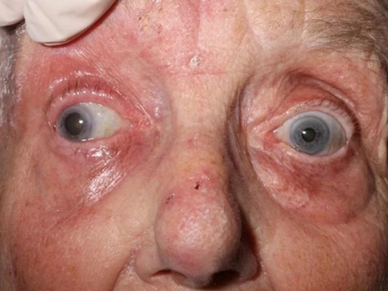 как герпес влияет на глаза у пожилых
