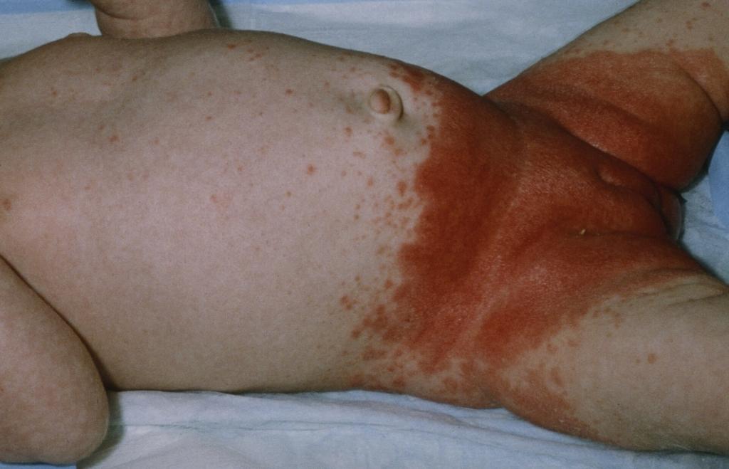 инфантильный себорейный дерматит в зоне подгузника