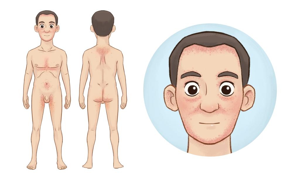 себорейный дерматит на теле