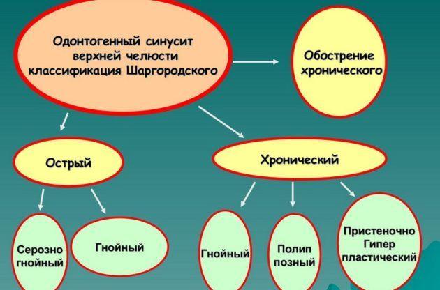 классификация синусита