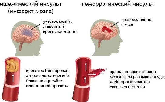 Ишемический инсульт и геморрагический инсульт отличия