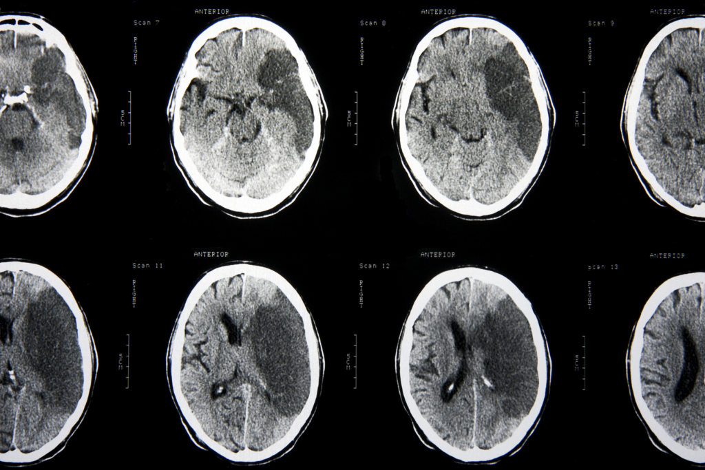 КТ мозга после инсульта