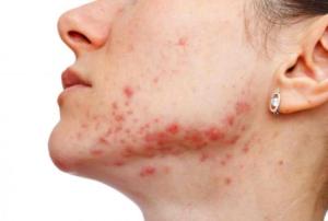 Бактериальное кожное заболевание лица