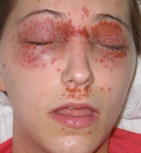 Вирусное заболевание кожи лица