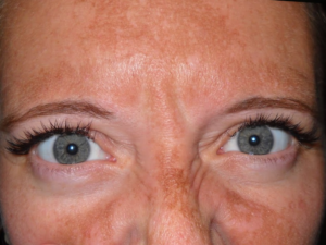 Повреждение кожи лица