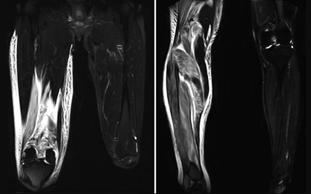 изображения МРТ показывают разбухшую ткань в ноге пациента