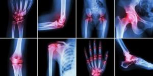 ра на рентгене