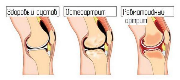 здоровый сустав, остеоартрит, ревматоидный артрит