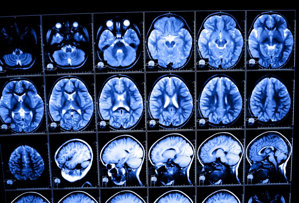 мрт мозга после травмы