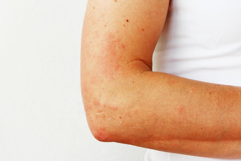 Аллергия на солнце рука