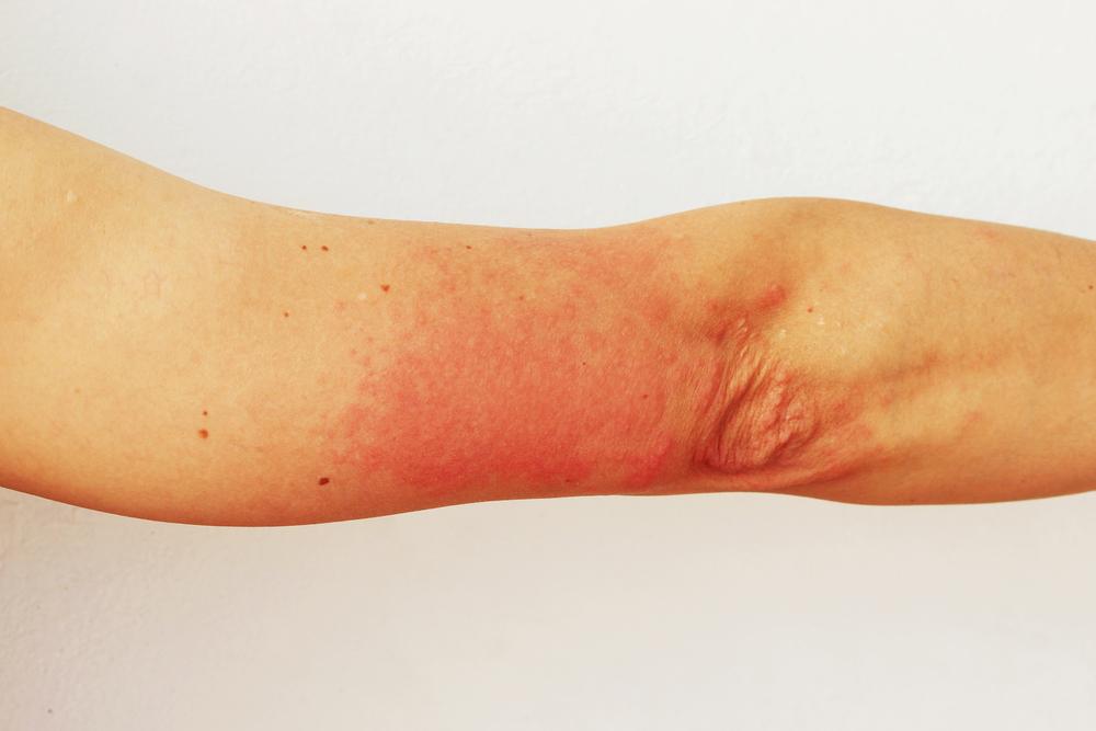 Аллергия на солнце
