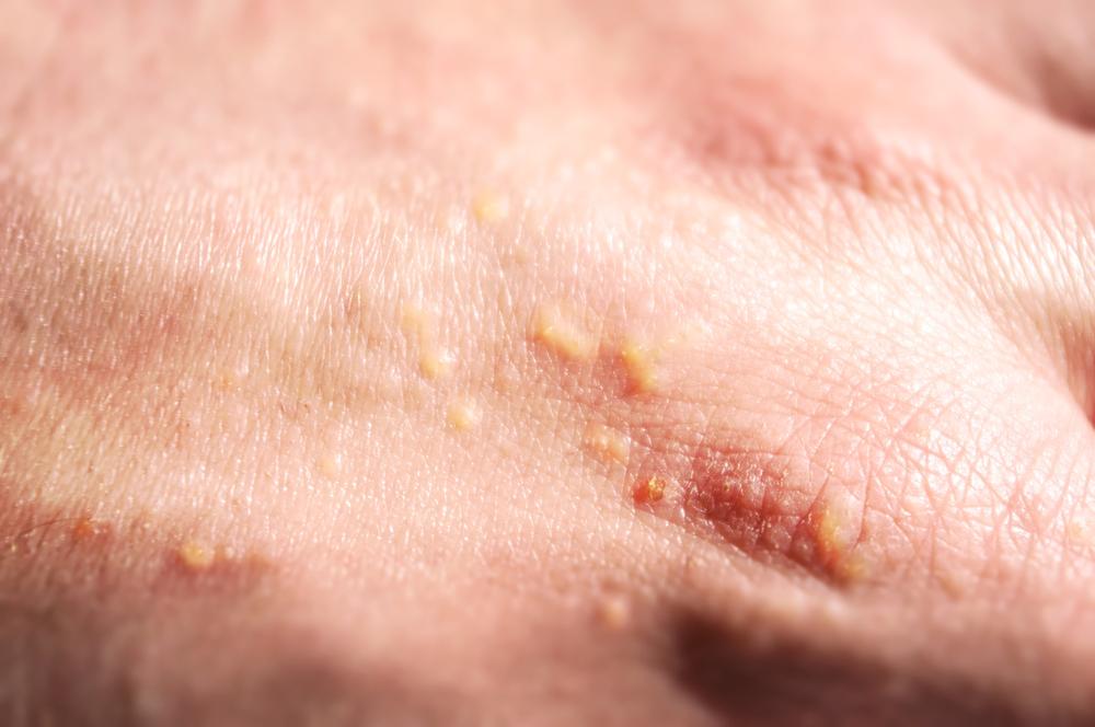 Аллергия на солнце - кожа