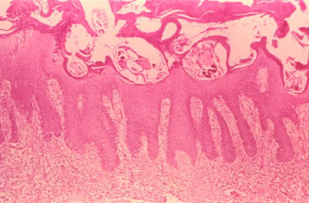 Изображение чесоточных клещей