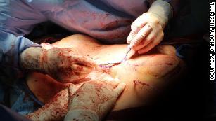 Команда из 12 врачей провела пятичасовую операцию