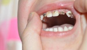 Молочные зубы тоже нужно лечить от кариеса