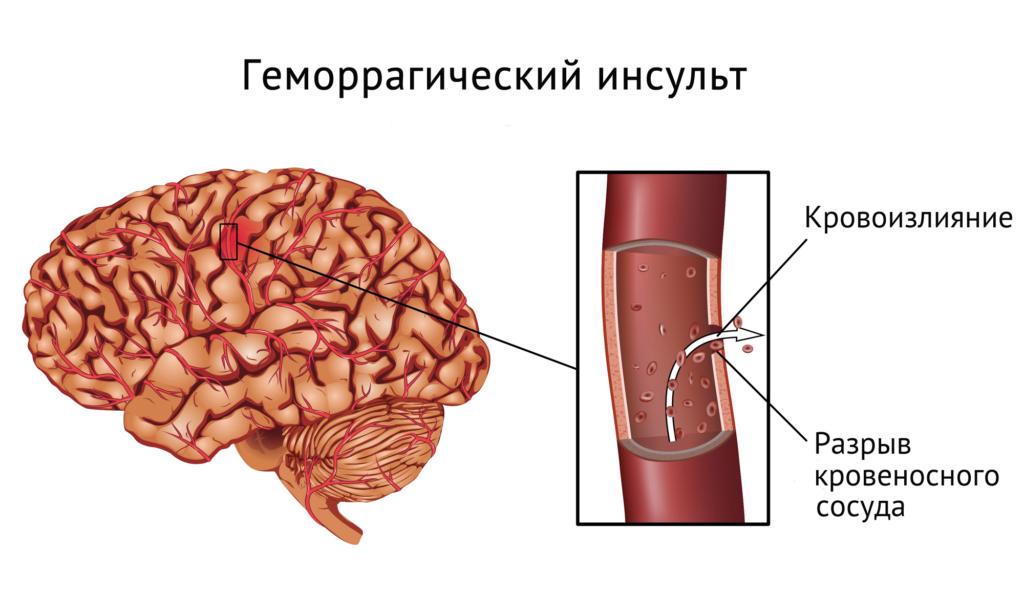 геморрагический инсульт схема