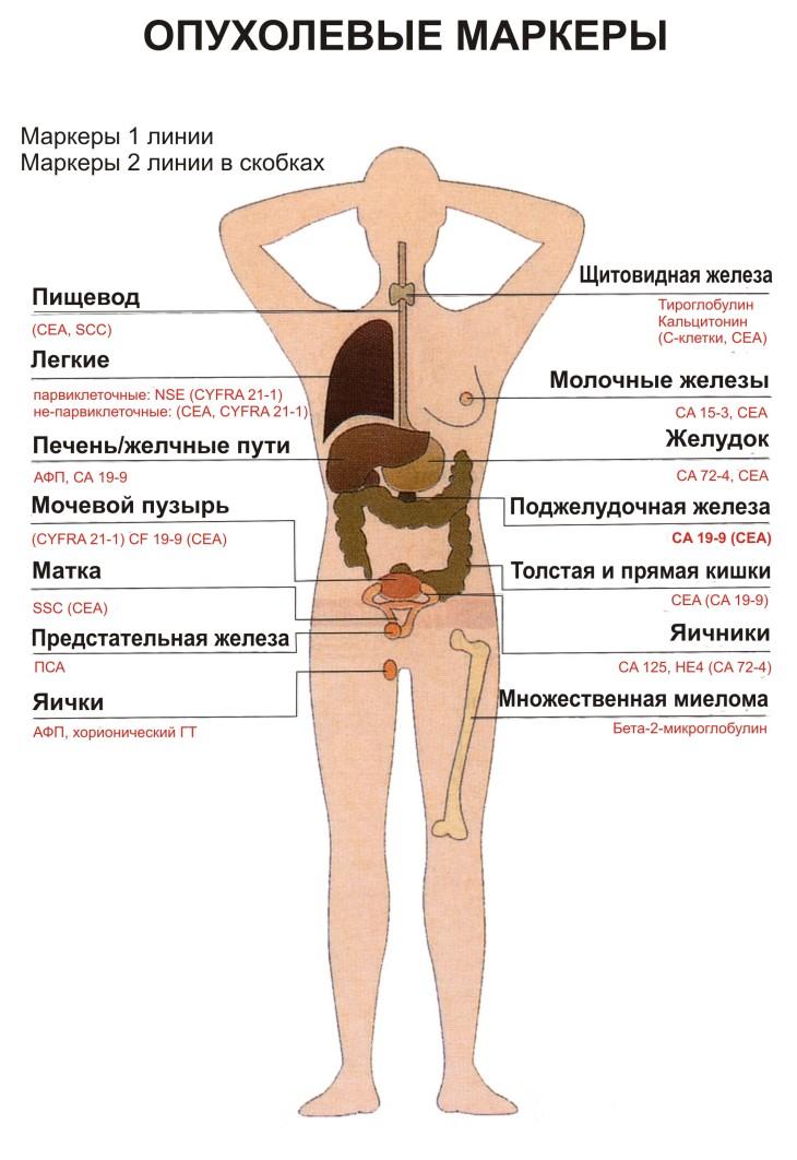 Опухолевые маркеры инфографика