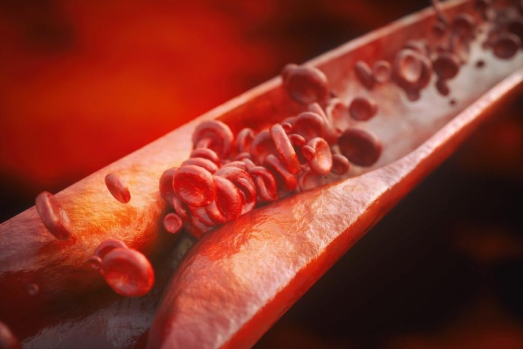 Атеросклероз может привести к инсульту
