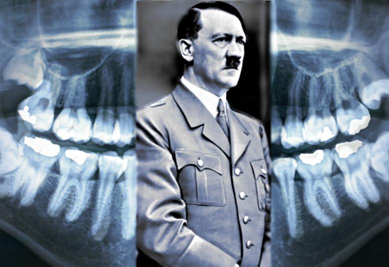 зубы Гитлера