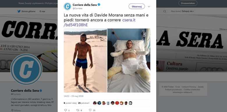 Давид Морана до и после операции