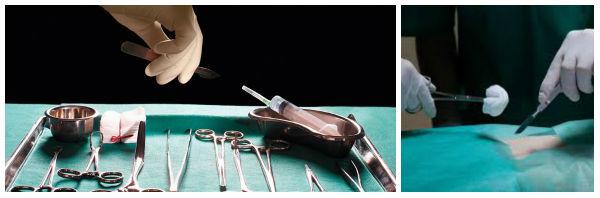 Хирургический дренаж