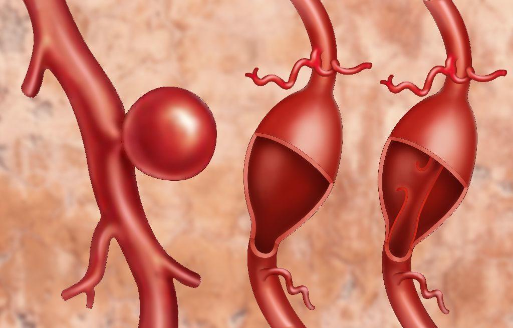 Аневризма возникает как выпуклость в стенке кровеносного сосуда