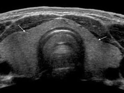изображение узи щитовидки