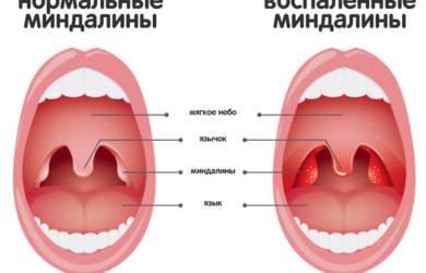 нормальные и воспаленные миндалины