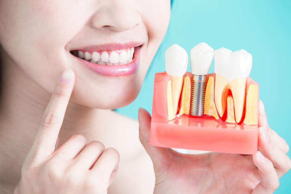 зубы как свои