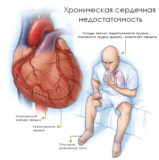 сердечная недостаточность у человека