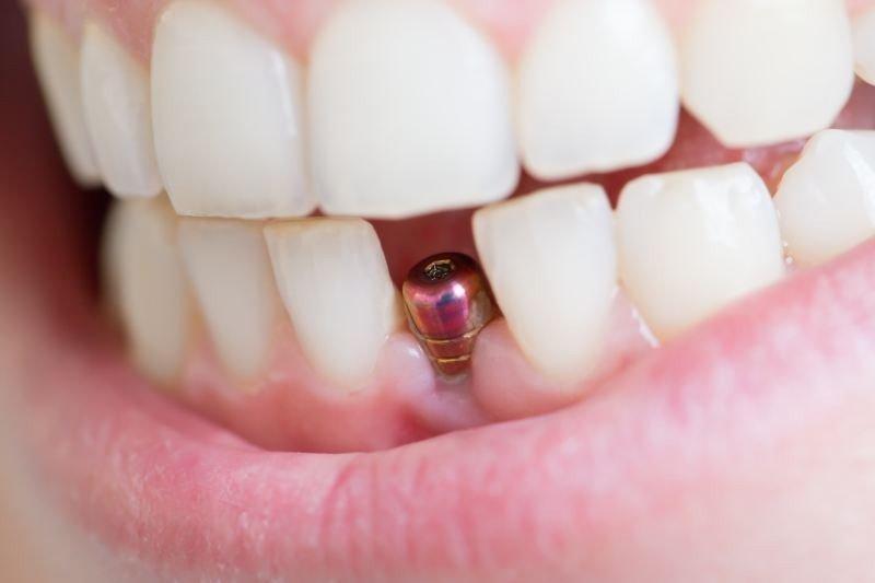 Зубной имплантат после установки