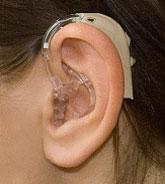 BTE слуховой аппарат
