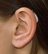 RITE слуховой аппарат