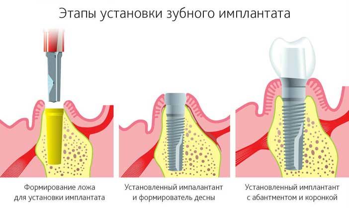 этапы установки зубного имплантата