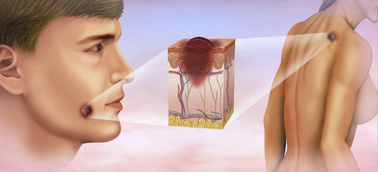 Как выглядит меланома